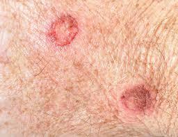 Cheratosi Attinica Cure
