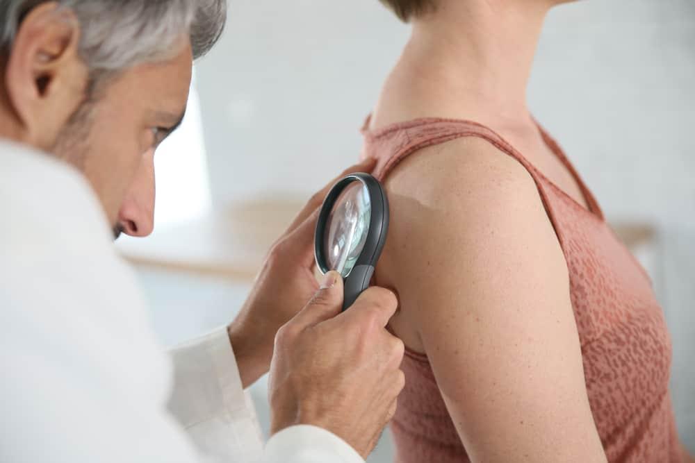 Cheratosi Attinica Prevenzione
