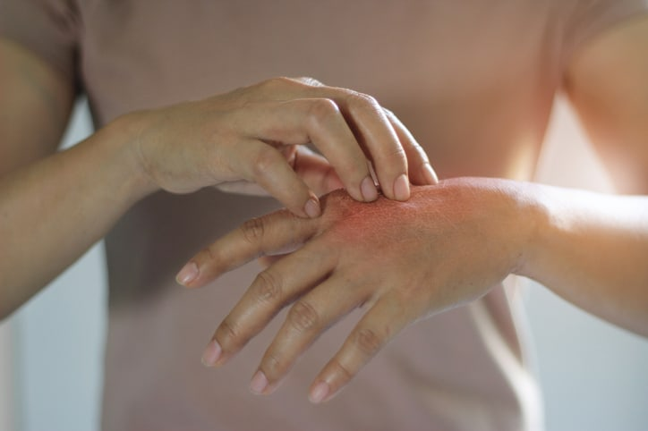 cura per la psoriasi