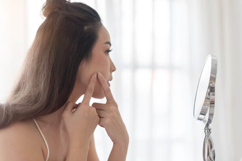acne e latticini